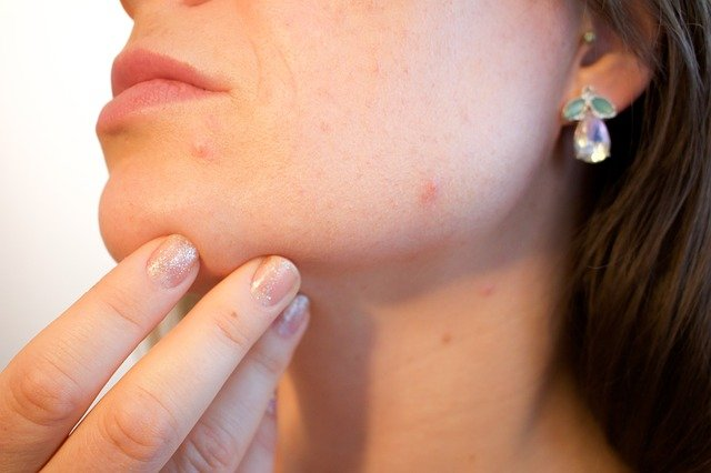 Start Getting Rid Of Your Acne Today!